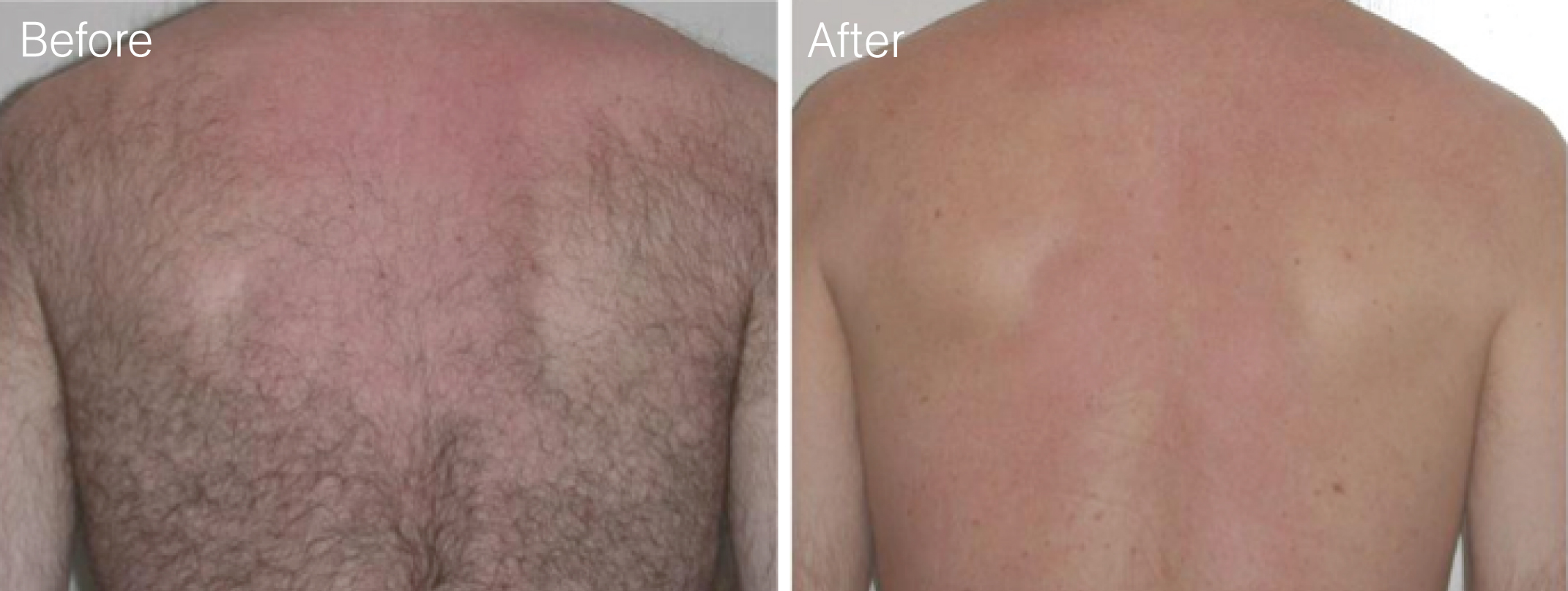 Male brazilian laser treatment 1